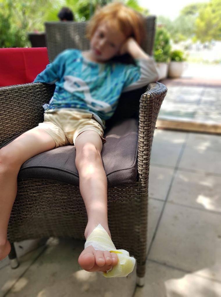 Ett barn med en omplåstrad fot.